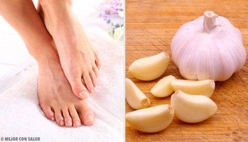 Remediu pentru unghiile încarnate cu usturoi