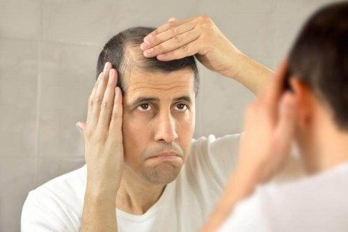 Nevoia de tratament natural pentru alopecie