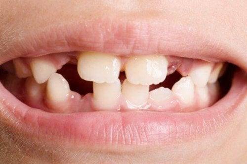 Tipuri și tratamente pentru agenezia dentară