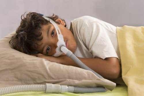Apneea în somn obstructivă la copii