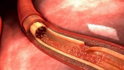 Ce este disecția aortică și care sunt cauzele sale