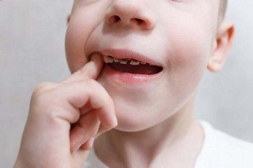 Copil cu dinți cariați