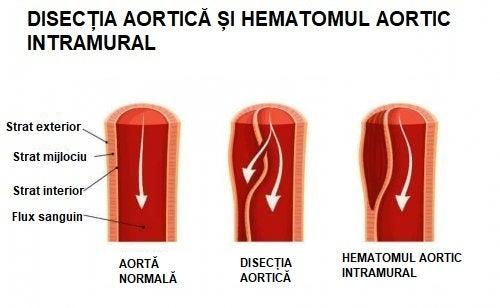 Ce este disecția aortică și hematomul aortic