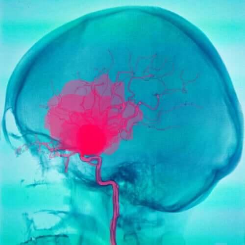 Informații despre paralizia cerebrală