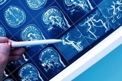 Ce este demența vasculară?
