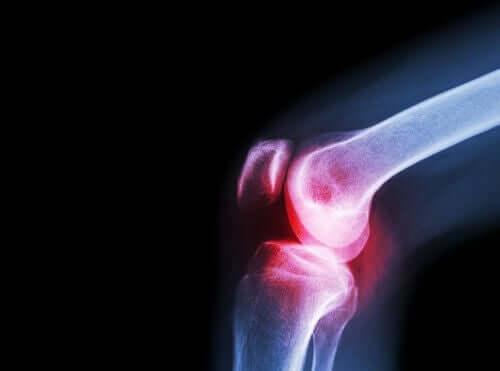 Efectele administrării de aceclofenac asupra articulațiilor