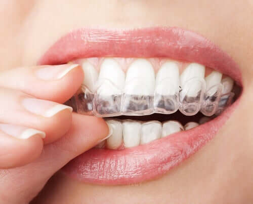 Aparatul dentar invizibil