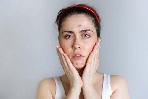 Femeie speriată de acneea în timpul menstruației