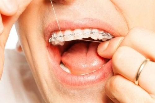 Igiena orală cu aparat dentar