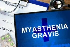 Miastenia gravis, Miastenie gravis și dureri articulare