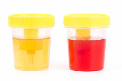 Sânge în urină: simptome și cauze ale hematuriei