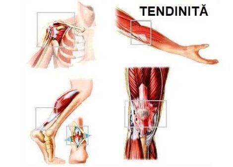deteriorarea țesuturilor moi la tendoanele articulare