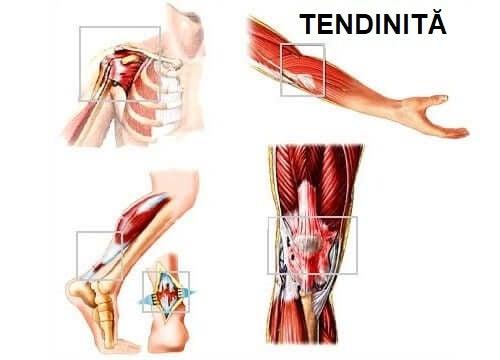 Reprezentare grafică a tendinitei
