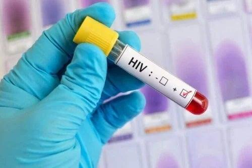Proceduri de combatere a HIV și SIDA