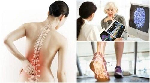 Oase atacate de afecțiuni care provoaca dureri de spate