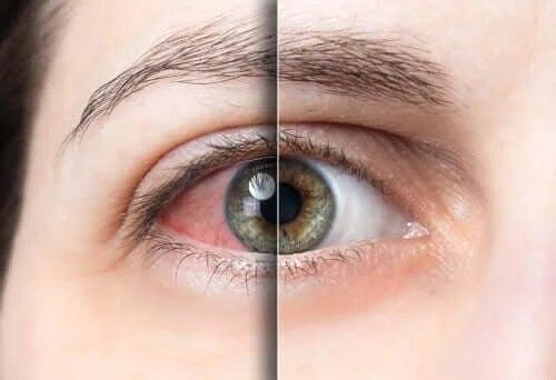 Ochi sănătos și ochi cu conjunctivită