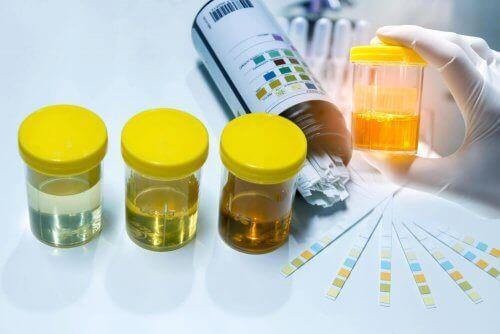 Probe de urină în recipiente sterile