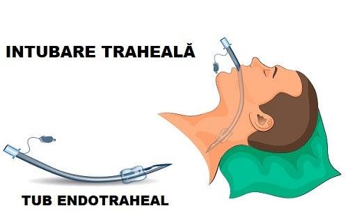 Instrucțiuni pentru utilizarea diferitelor tipuri de tuburi endotraheale