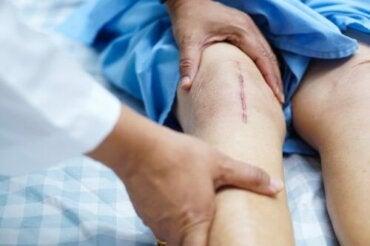 recuperare după o modificare a articulației genunchiului