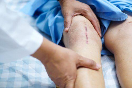 Cum se face recuperarea după o intervenție chirurgicală la menisc?