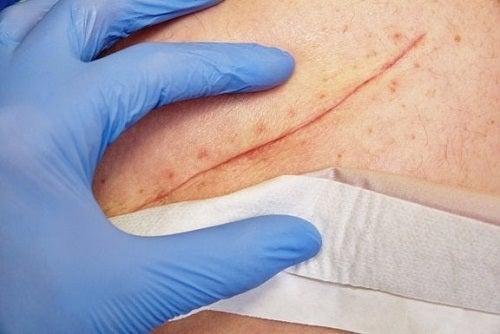 Tehnici pentru închiderea rănilor