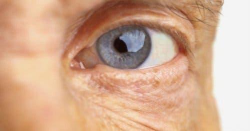 Ochi afectat de degenerescența maculară legată de vârstă