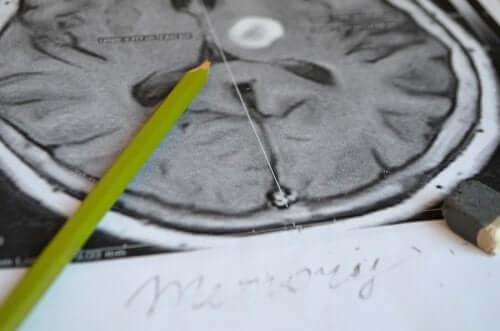 Simptomele amneziei și metode de prevenție