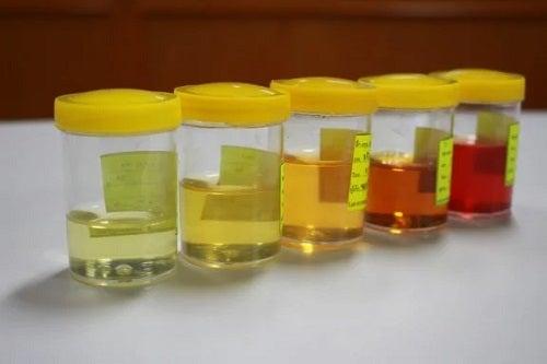 Schimbările la nivelul urinei: motive de îngrijorare