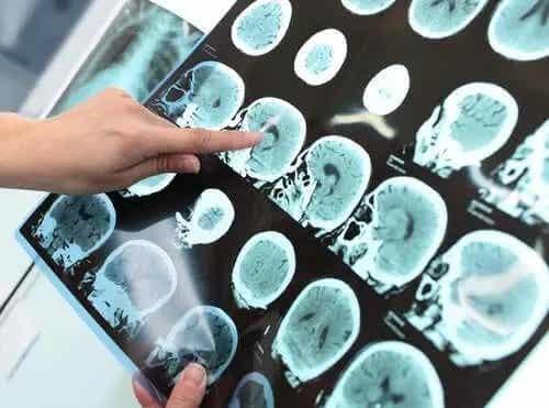 Tulburarea neurocognitivă majoră (demența)