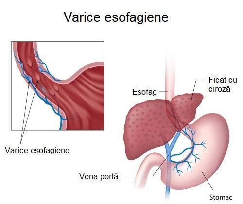 Simptomele varicelor esofagiene