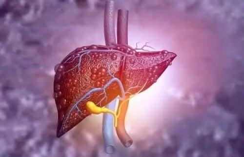 Simptome și tratamente pentru atrezia biliară