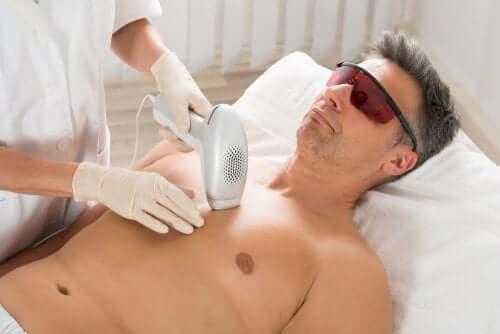 Bărbat epilat pe piept cu laser