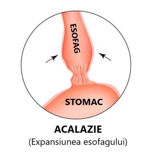 Deseun care ilustrează daunele produse de acalazia esofagiană