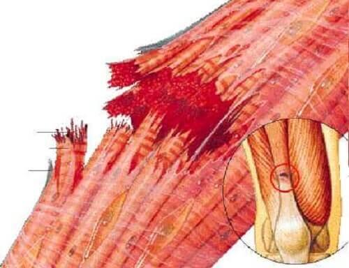 Desen ilustrând o fibră musculară ruptă