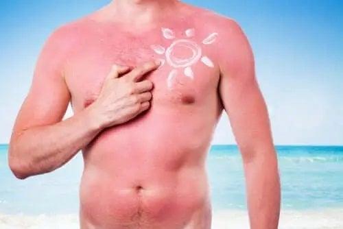 Efectele nocive ale soarelui asupra pielii