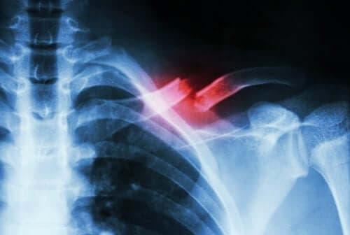 Radiografie ilustrând un os fracturat