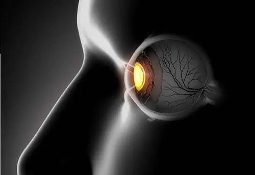 Simptome și tratamente pentru ochii încrucișați