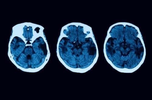 Atrofia corticală posterioară: diagnostic și tratament