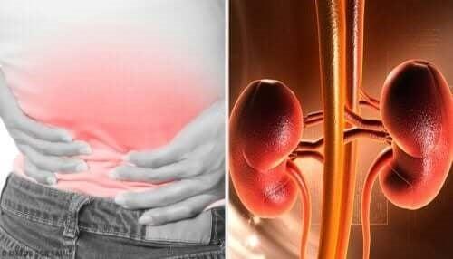 Pacient care are nevoie de tratamente pentru abcesul renal