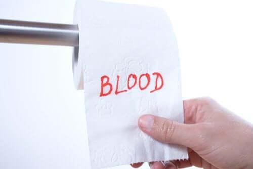 De ce apare sângerarea rectală?