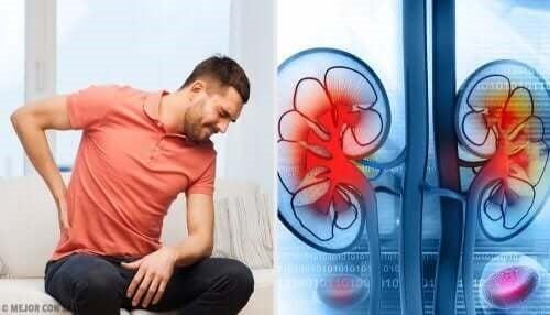 Bărbat cu dureri provocate de un abces renal