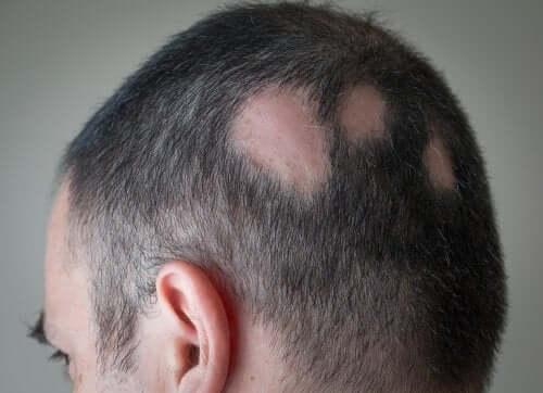 Bărbat care are nevoie de un tratament pentru alopecie cu minoxidil