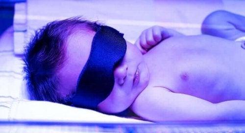 Bebeluș tratat cu fototerapie