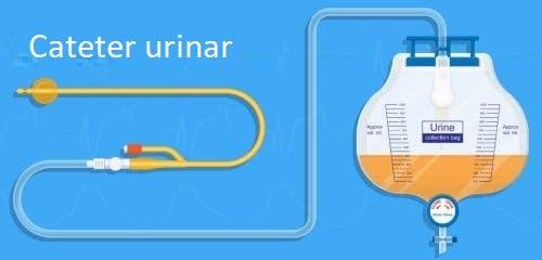 Tratament pentru retenția urinară postpartum