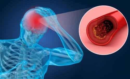 Factori de risc pentru AVC și principalele simptome
