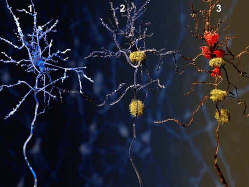 Fazele maladiei Alzheimer la nivel neuronal