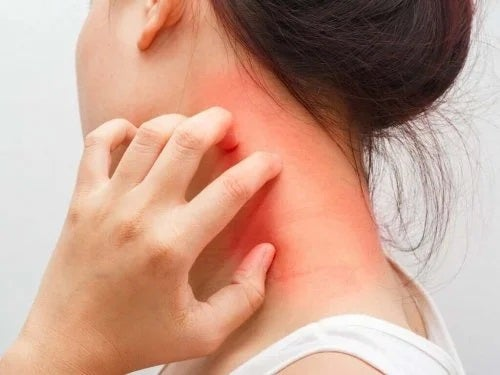Femeie care simte ce este dermatita atopică