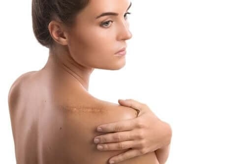 Femeie operată la umăr