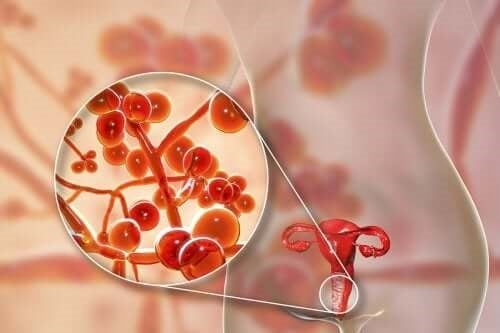 Infecția cu Mycoplasma genitalium: tratament
