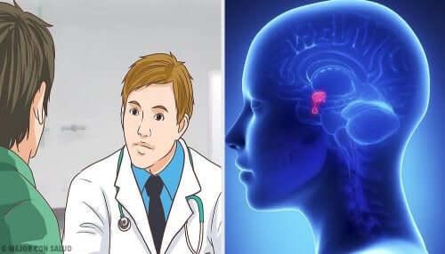 Ce este adenomul hipofizar și cum se tratează?